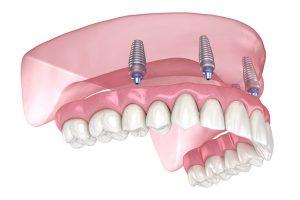 Voorbeeld all-on-4 tegen gebit aan