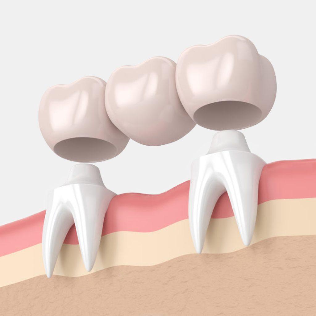 brug vast aan twee tanden