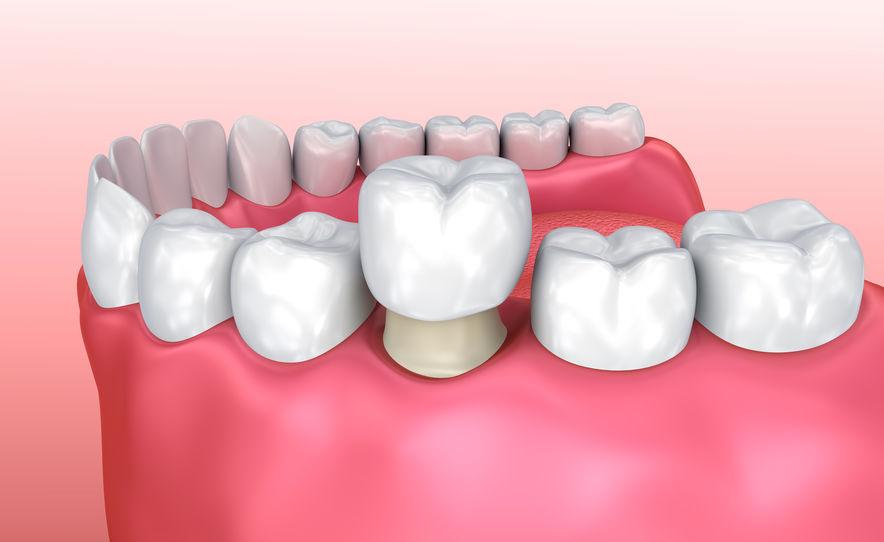 Voorbeeldfoto van kroon op tand plaatsen