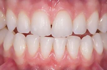 Tanden bleken na